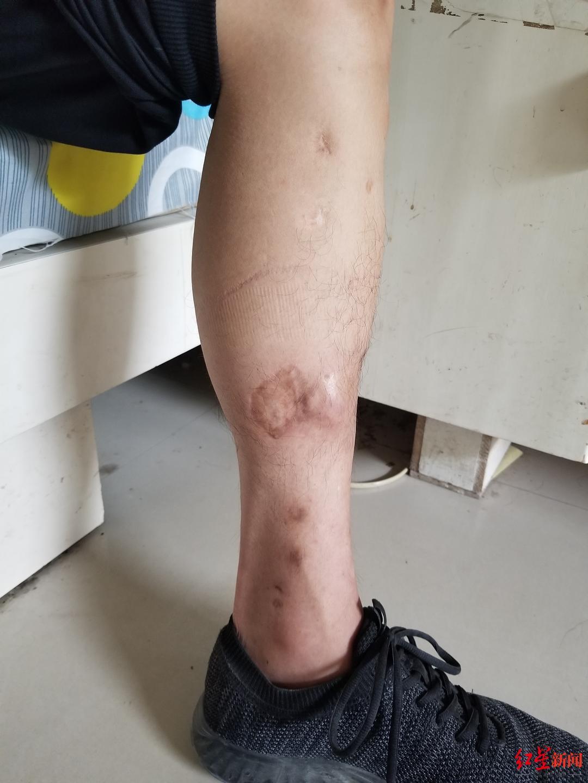 仝建华腿上的伤疤2.jpg